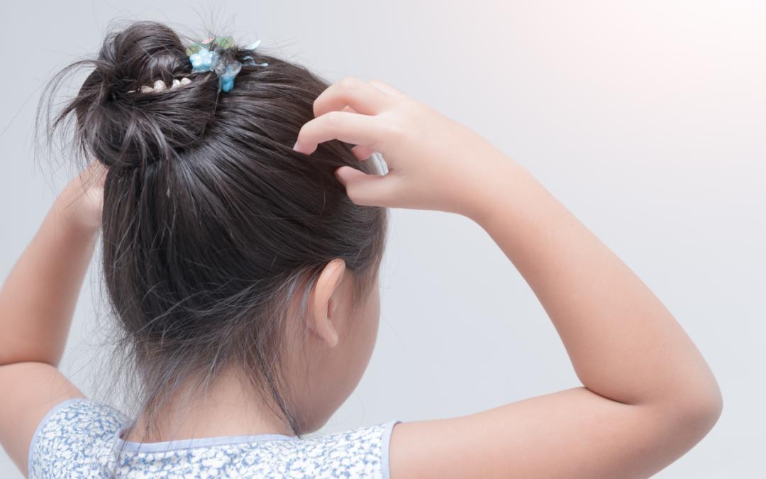 DIY Treatments for an itchy scalp
